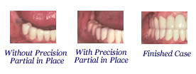 Precision Attachment Partial Dentures in Scarsdale NY, Westchester County