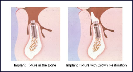 Dental Implants in Scarsdale NY, Westchester County