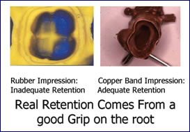 Crown and Bridgework in Scarsdale NY, Westchester County | copper-band-impressions