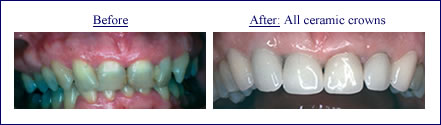 Crown and Bridgework in Scarsdale NY, Westchester County | ceramic-crowns