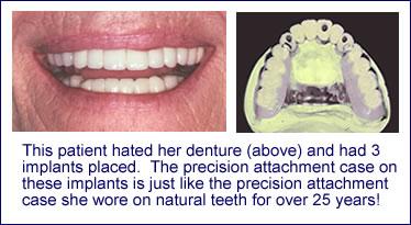 Dentures - Edward Feinberg, DMD - Scarsdale NY