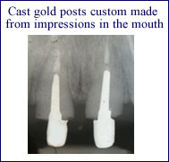 posts-root-canal