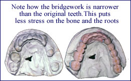 Crown and Bridgework in Scarsdale NY, Westchester County | preventing-periodontal-disease