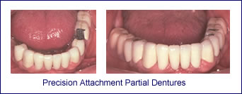 Precision Attachment Partial Dentures