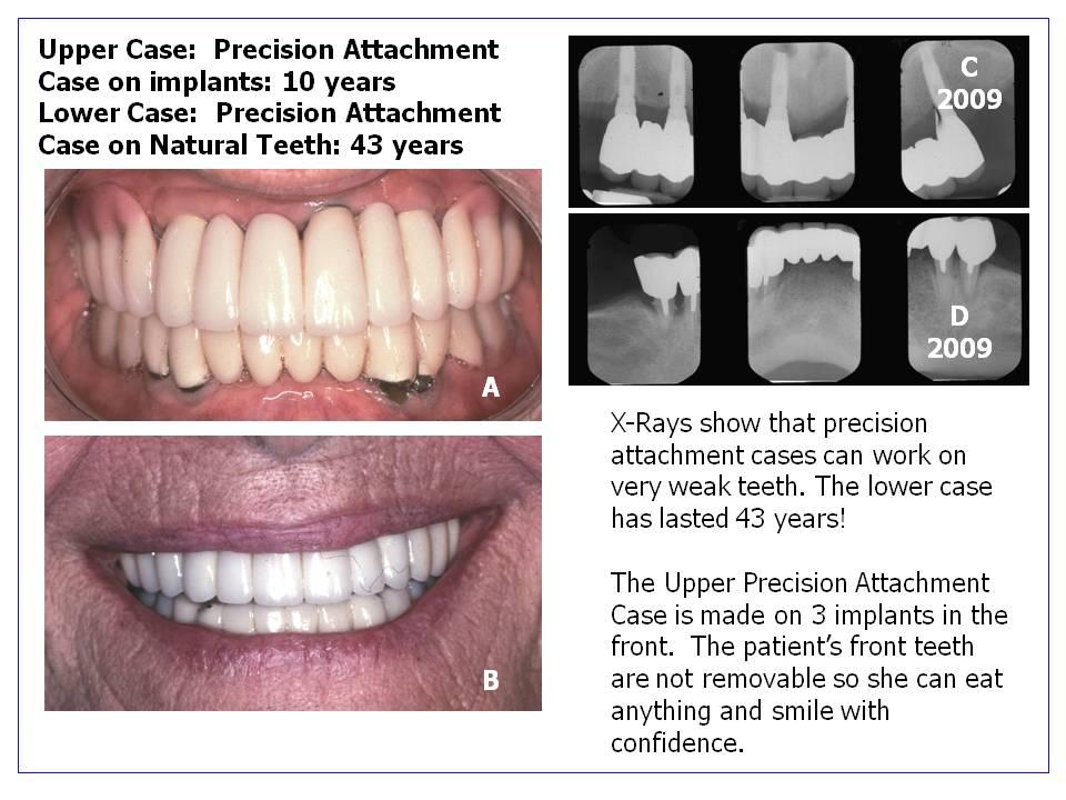 Dental Restoration - Edward Feinberg, DMD - Scarsdale NY Edward M ...