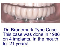 Implant Restorations in Scarsdale NY, Westchester County