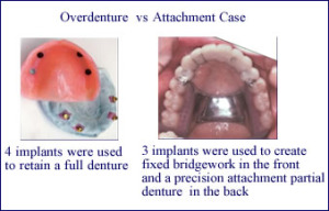implants-partial-denture