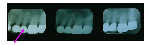 Dental X-Rays in  Scarsdale NY, Westchester County
