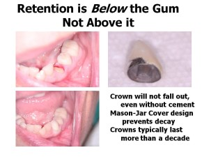 Re-cementing permanent crowns should not be necessary